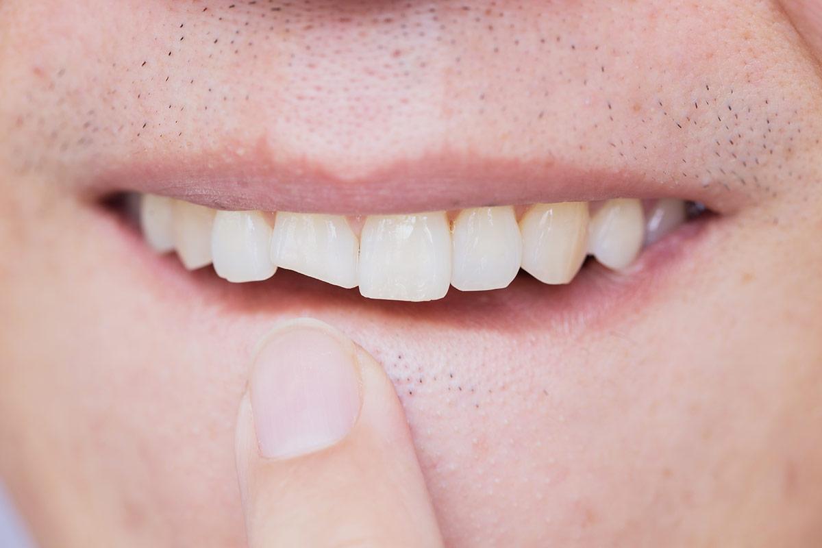 Cheap-dental-composite-bonding-London