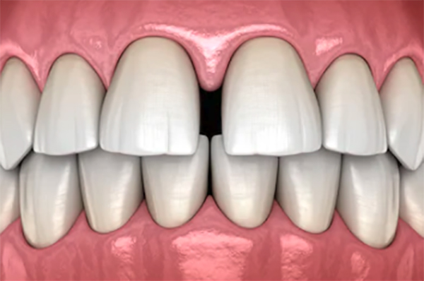 Dental-diastema-gap-closing-bonding