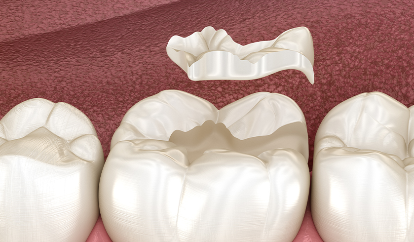 dental inlay, dental crown